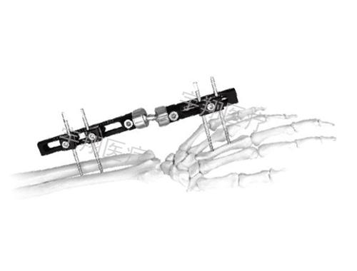 外固定支架治疗骨折患者的护理