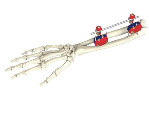 如何正确使用和管理外来骨科器械?