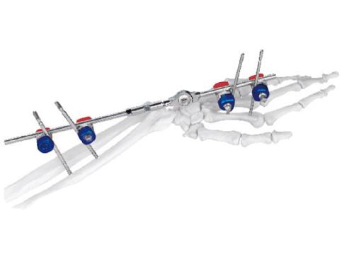外固定支架手术方法的优点