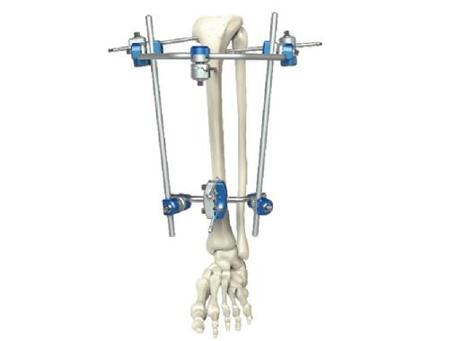 骨折治疗方法有哪几种?