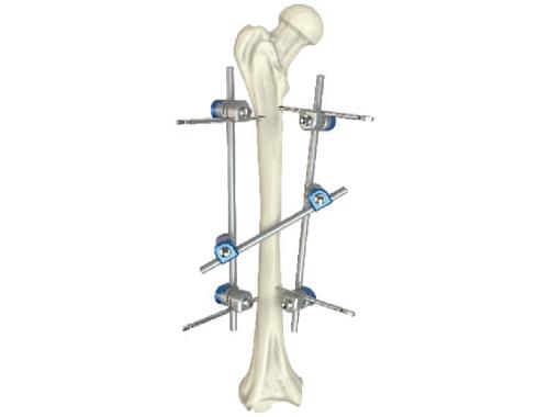 单侧外固定支架治疗胫腓骨骨折的并发症及其处理
