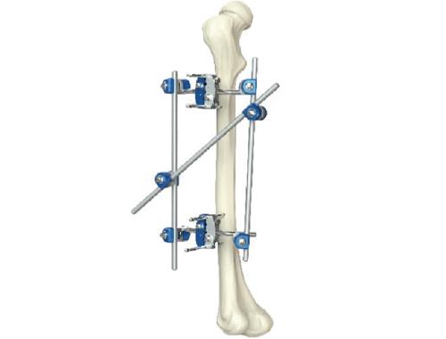 骨科外固定支架有一根经常流黄水并带有血丝,怎么办?